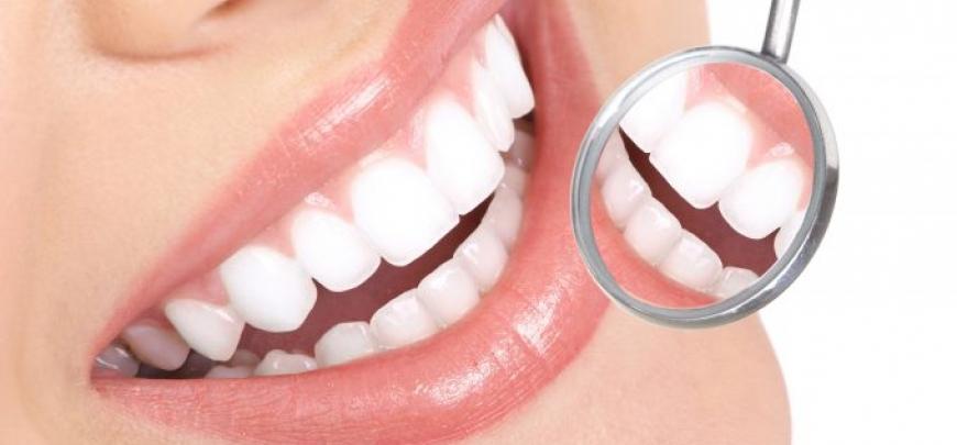 igiene orale denti gengive infiammazione gengiviti